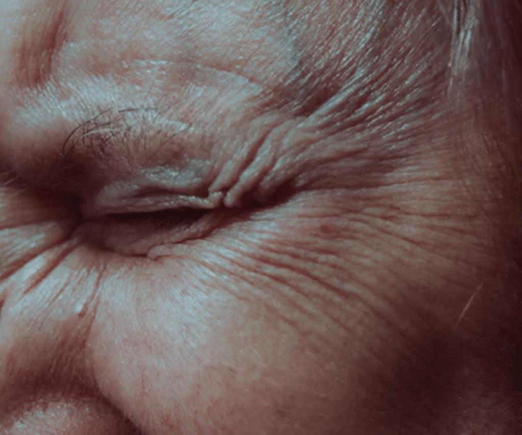 wrinkle eye shut estheticians verde salon spa